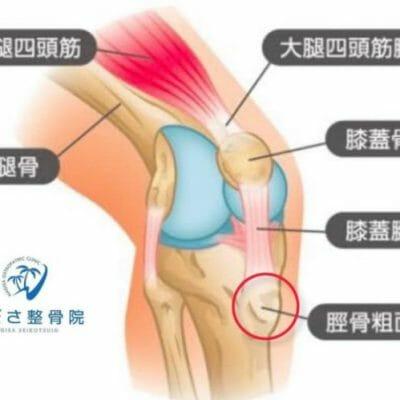 スポーツしている子供たちの膝下の骨の痛みとは