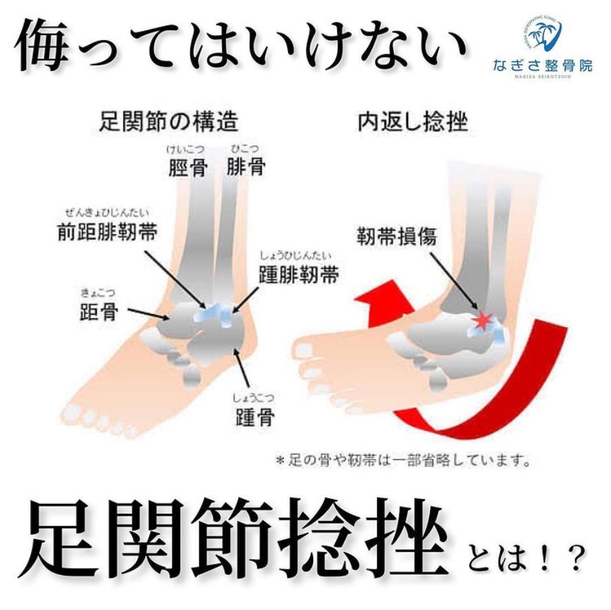 本当に足の捻挫(靭帯の損傷)ですか?初期処置が大切です!